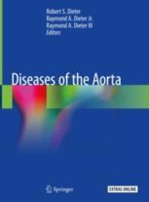 Inflammatory And Connective Tissue Disorders Of The Aorta Springerlink