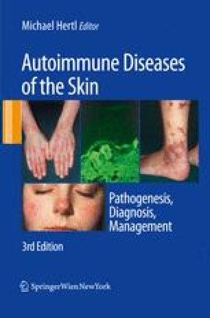 Chronic Urticaria as an Autoimmune Disease | SpringerLink