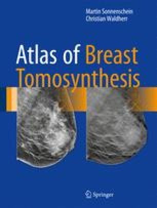 Atlas of Breast Tomosynthesis