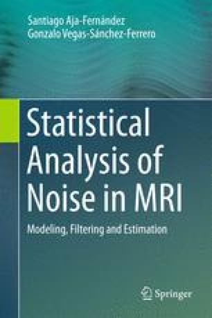 Statistical Analysis of Noise in MRI