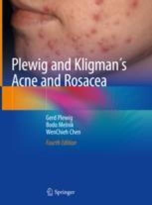 Acne Pathogenesis | SpringerLink