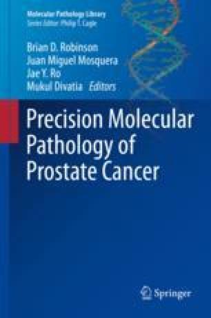 Precision Molecular Pathology of Prostate Cancer