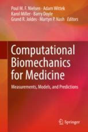 Image-Based Biomechanical Modelling Heart Failure 978-3-319-75589-2.jpg