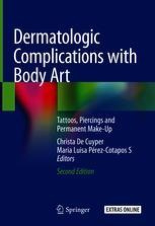 Allergic Reactions To Pigments Metals And More Body Art From The Allergist S Point Of View Springerlink