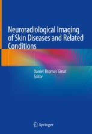 Introduction: Skin Anatomy, Imaging Approaches, 978-3-319-90931-8.jpg