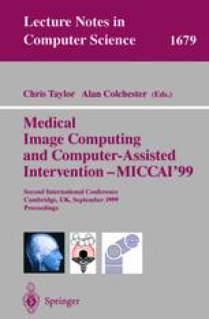 Medical Image Computing and Computer-Assisted Intervention – MICCAI'99
