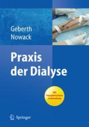 Dialyse auf der Intensivstation   SpringerLink
