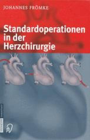 Standardoperationen in der Herzchirurgie