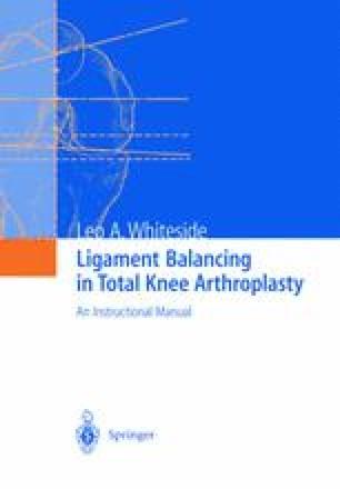 Ligament Balancing in Total Knee Arthroplasty