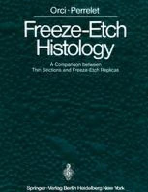 Freeze-Etch Histology