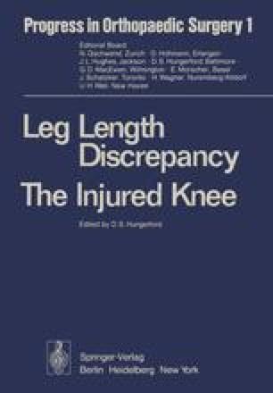 Leg Length Discrepancy The Injured Knee