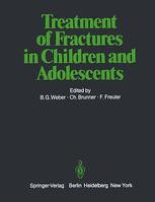 Treatment of Fractures in Children and Adolescents