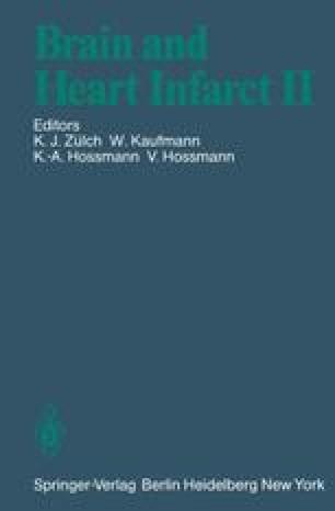 Pathophysiology of Stroke Edema | SpringerLink