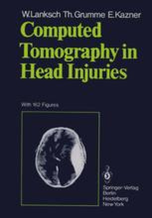 Computed Tomography in Head Injuries