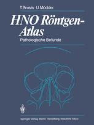 HNO Röntgen-Atlas