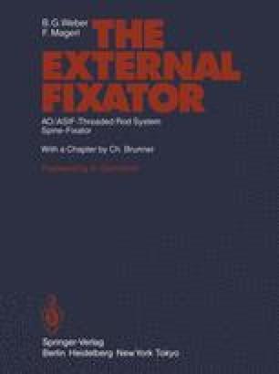 The External Fixator