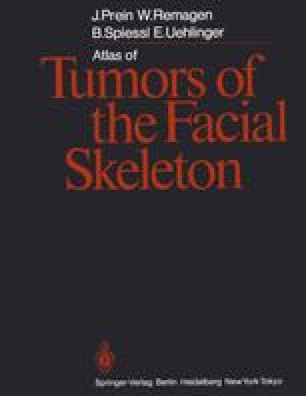 Atlas of Tumors of the Facial Skeleton