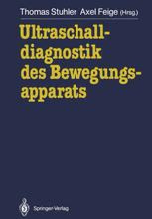 Ultraschalldiagnostik des Bewegungsapparats