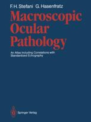 Macroscopic Ocular Pathology