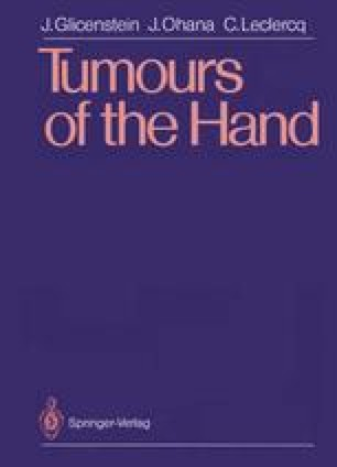 Tumours of the Hand