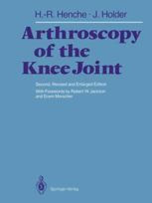 Arthroscopy of the Knee Joint
