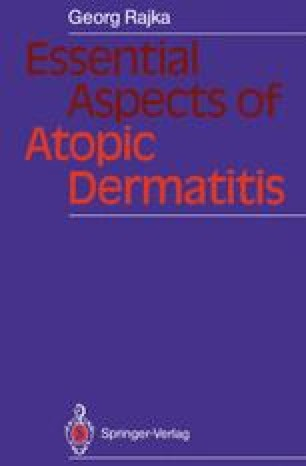 Essential Aspects of Atopic Dermatitis