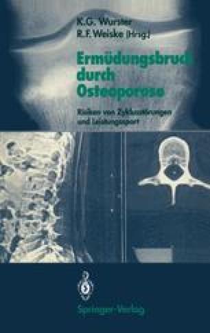 Ermüdungsbruch durch Osteoporose