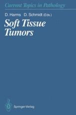 Soft Tissue Tumors