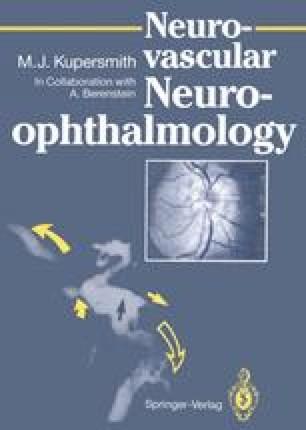 Neurovascular Neuro-ophthalmology