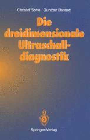 Die dreidimensionale Ultraschalldiagnostik