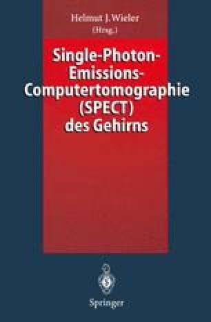 Single-Photon-Emissions-Computertomographie (SPECT) des Gehirns