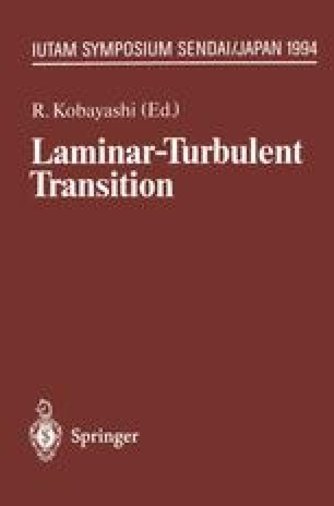 Laminar-Turbulent Transition
