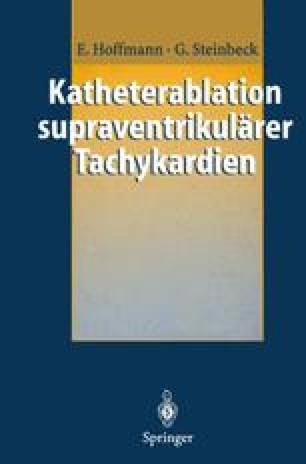Katheterablation supraventrikulärer Tachykardien