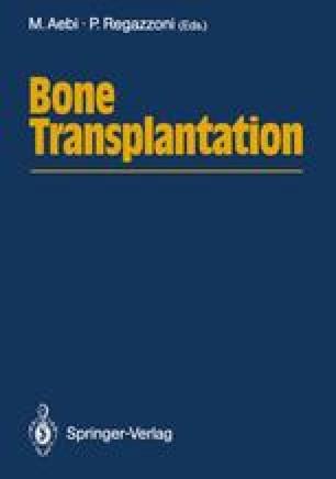 Bone Transplantation