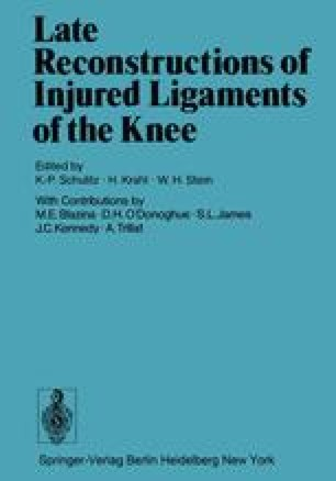 Late Reconstructions of Injured Ligaments of the Knee