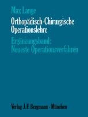 Orthopädisch-Chirurgische Operationslehre