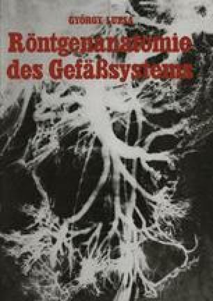 Die Aorta Abdominalis und Ihre Zweige | SpringerLink