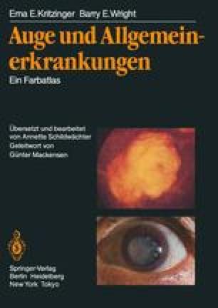 Auge und Allgemeinerkrankungen