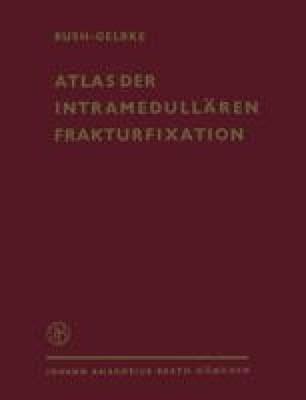 Atlas der Intramedullären Frakturfixation nach Rush