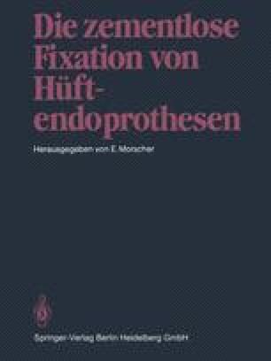 Die zementlose Fixation von Hüftendoprothesen