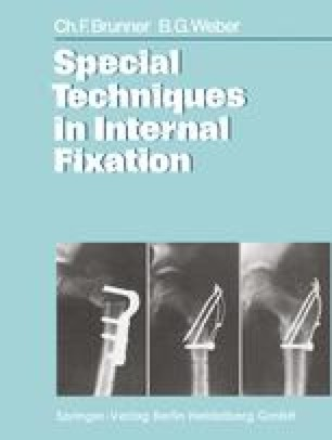 Special Techniques in Internal Fixation