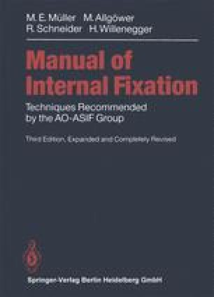 Manual of INTERNAL FIXATION