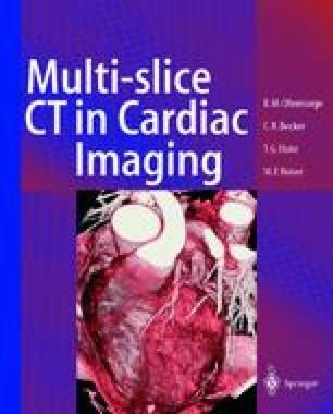 Multi-slice CT in Cardiac Imaging