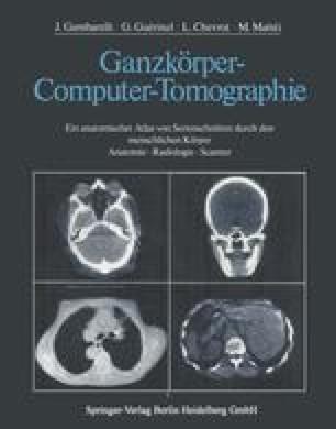 Ganzkörper-Computer-Tomographie