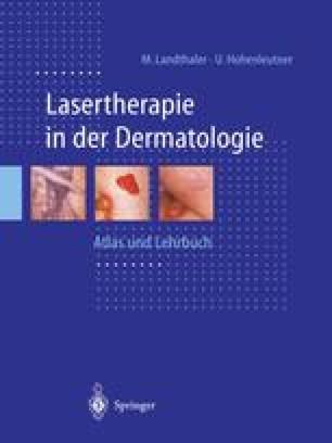 Lasertherapie in der Dermatologie