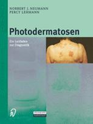 Photodermatosen