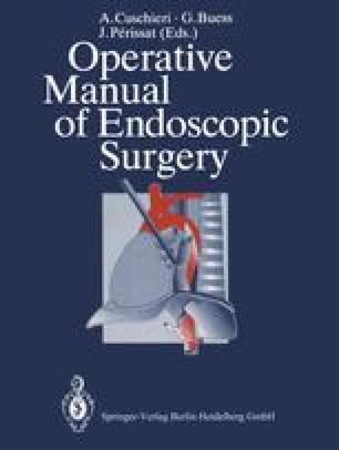 Operative Manual of Endoscopic Surgery