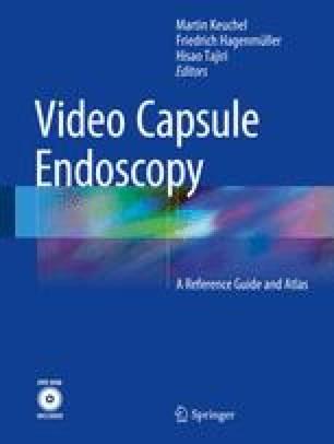 Video Capsule Endoscopy