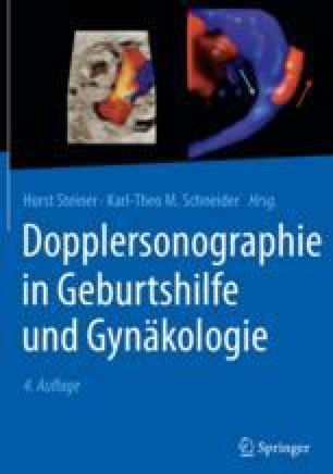 Dopplersonographie im 1. Trimenon | SpringerLink