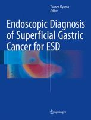 Endoscopic Diagnosis of Superficial Gastric Cancer for ESD